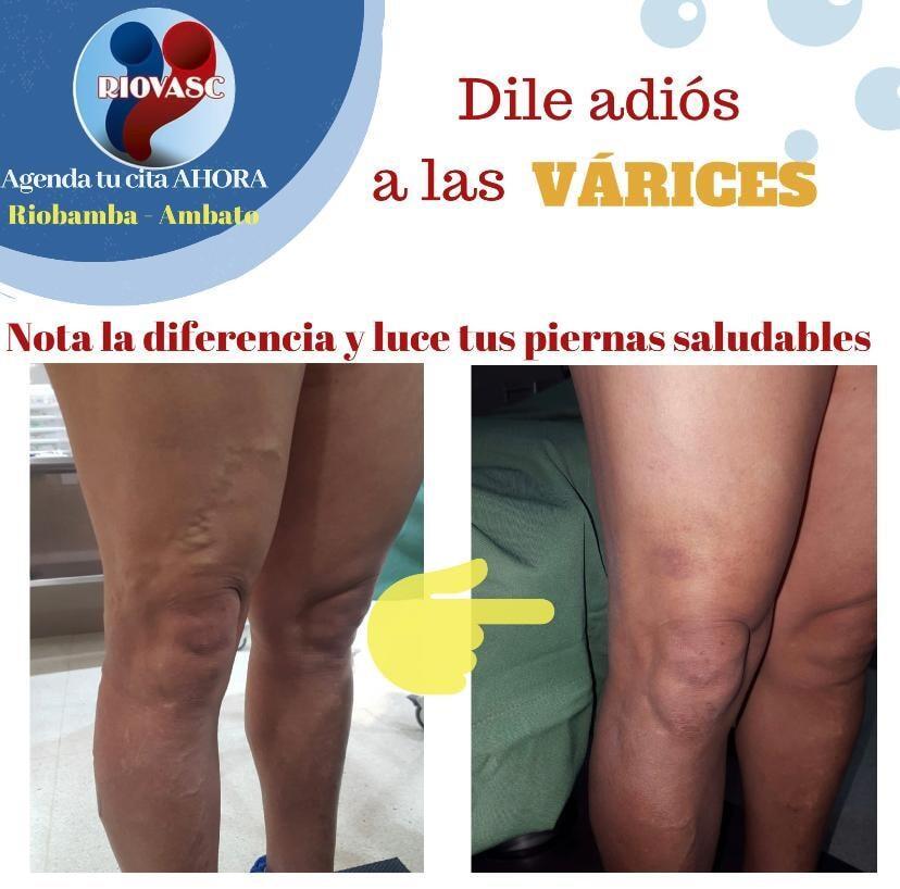 varices riobamba